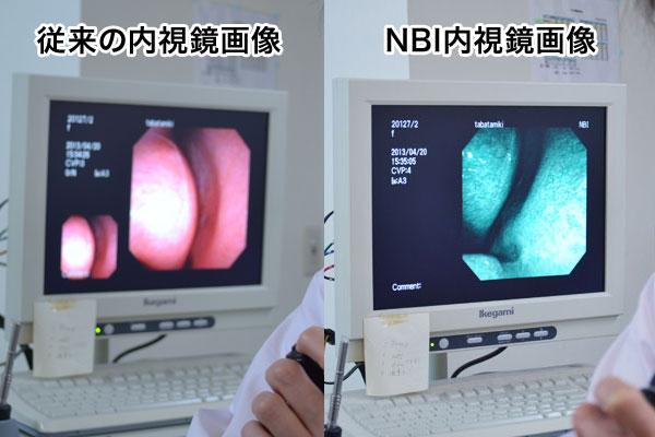 鼻咽頭・喉頭内視鏡検査 NBI検査